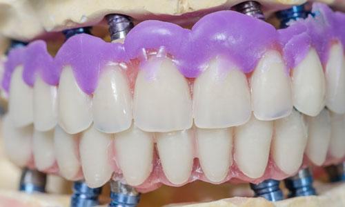 full mouth reconstruction in Charlotte, Matthews, Mallard Creek, and Wesley Chapel