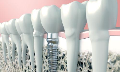 dental implant crown charlotte nc