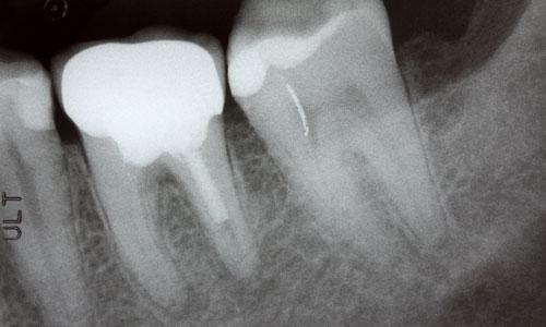dental x-rays in charlotte