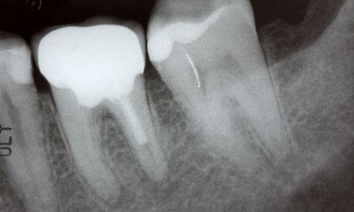 Dentist X Ray