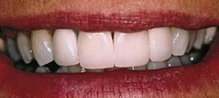 after dental crown charlotte nc
