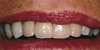 before dental crown charlotte nc