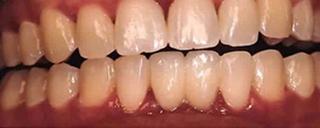 after dental implant restoration in charlotte nc