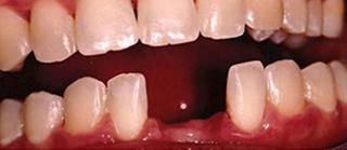 before dental implant restoration in charlotte nc