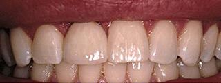 after implant restoration in matthews nc
