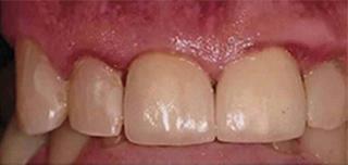 after dental implant crown matthews nc