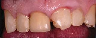 before dental implant crown matthews nc