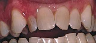 before dental implant crown mallard creek