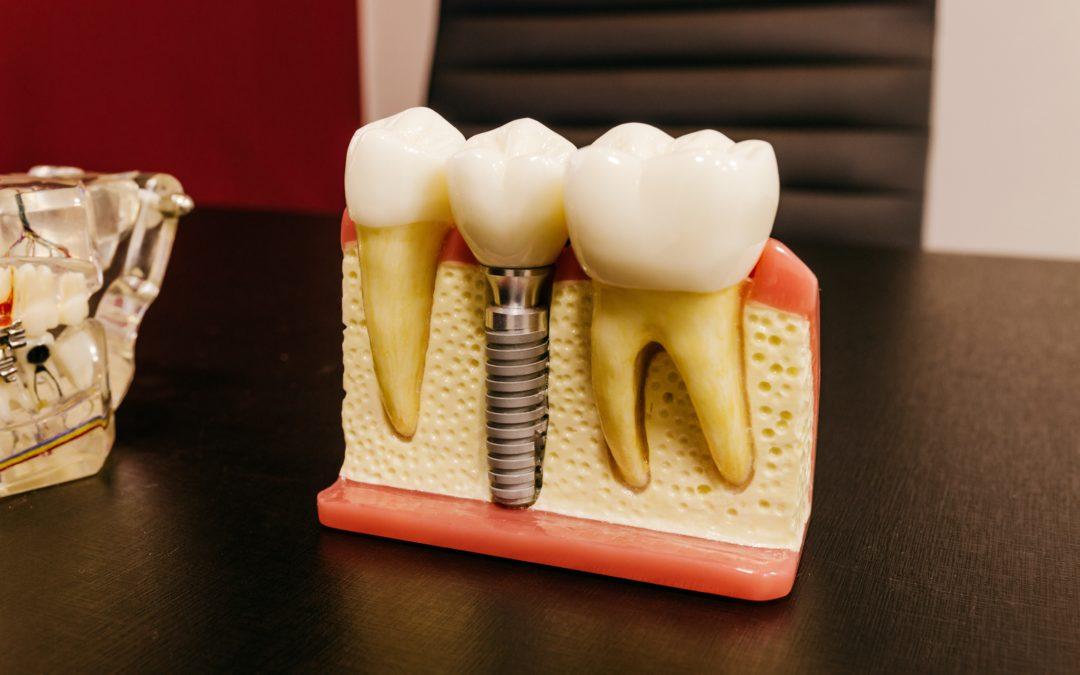 Top 6 Benefits of Dental Implants